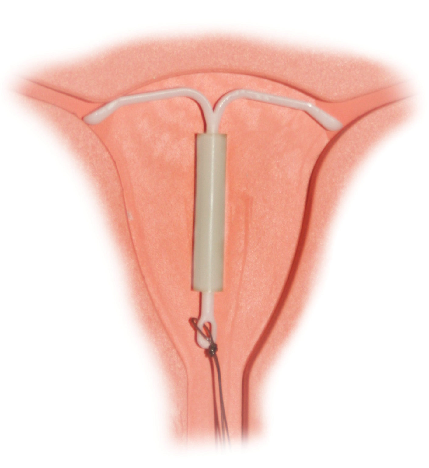 Painful sex iud